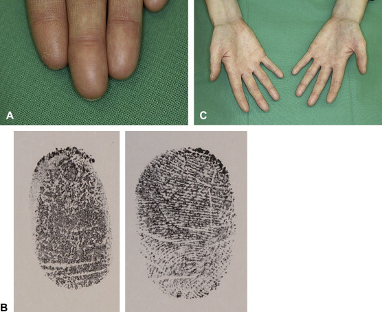 ADERMATOGLYPHIA - Inborn missing fingerprints is caused by a genetic defect! 1-s2.0-S0190962209014753-gr1